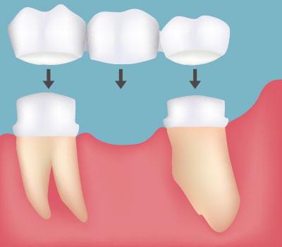 Dental Bridges in Gaithersburg MD