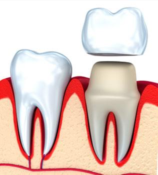 White Tooth Crowns in Gaithersburg, MD