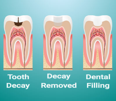 Dental Fillings in our Gaithersburg Office