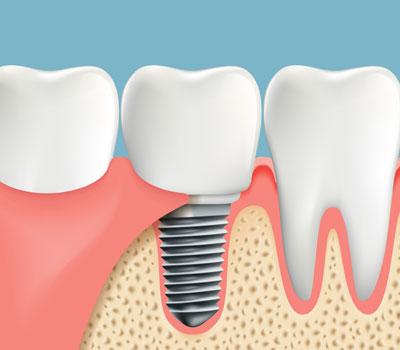 Dental Implants for patients in Gaithersburg, Montgomery Village, Laytonsville, MD