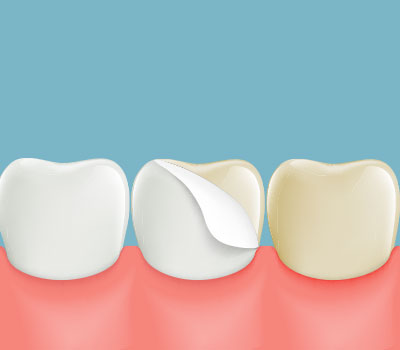 Dental Veneers near Montgomery Village, Laytonsville, MD
