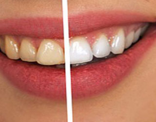 White Teeth, Brighter Smile in our Gaithersburg office
